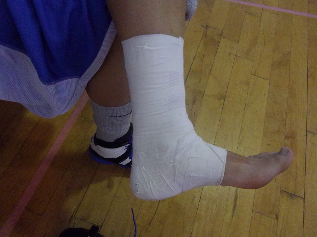 Rigid taping for a basketball player with a mild ankle sprain enabling them to play.