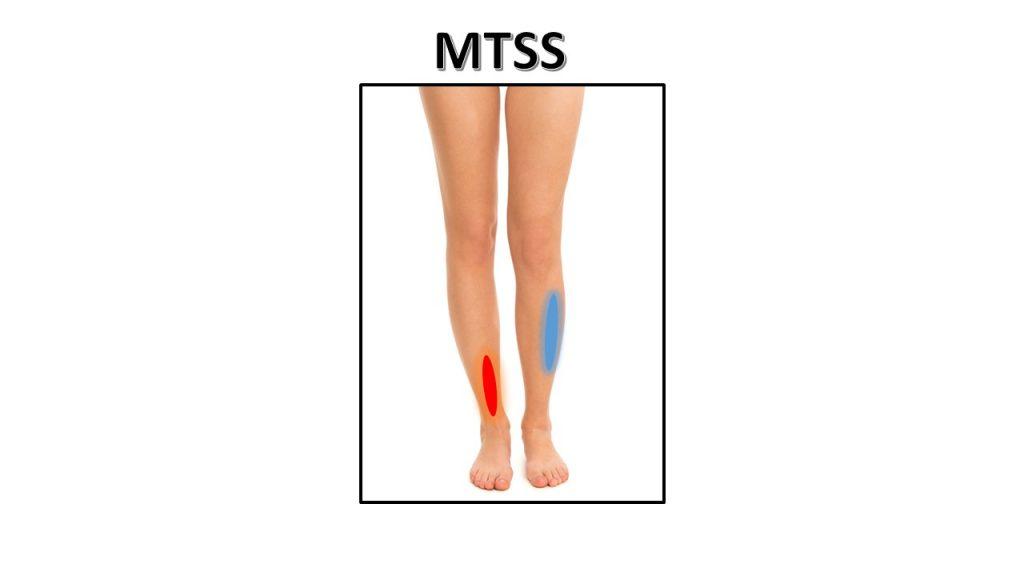 mtss-1